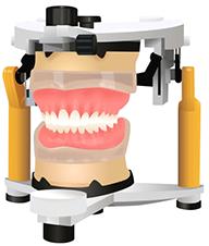練馬区武蔵関、みたに歯科医院の最新入れ歯のご案内