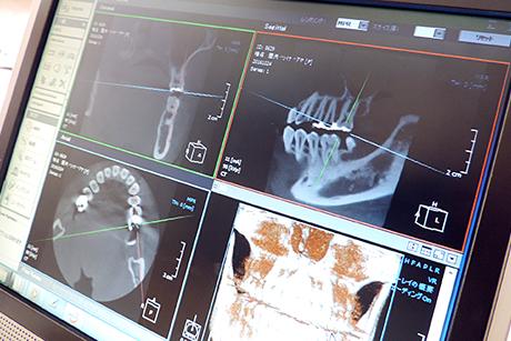 練馬区武蔵関、みたに歯科医院のレントゲンモニタ