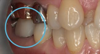 練馬区武蔵関、みたに歯科医院の症例紹介